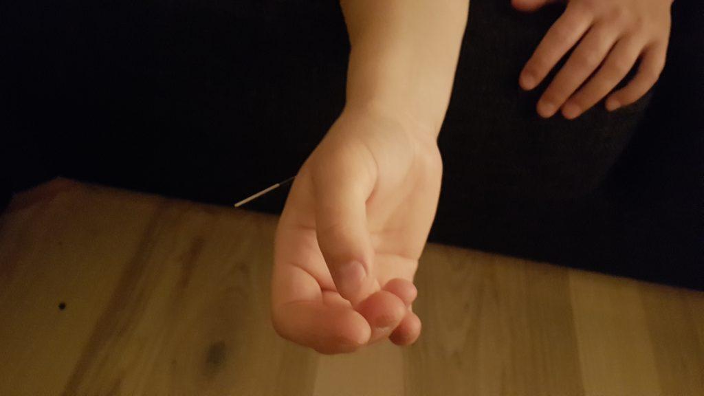 akupunktur under förlossning